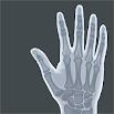 Acupuncture Voll Atlas 1.0